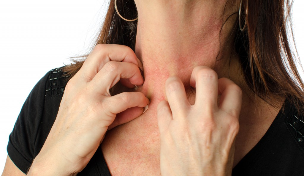 Woman scratching her neck